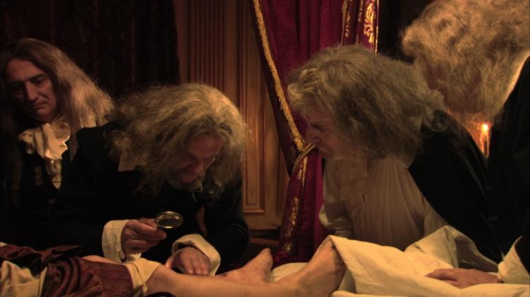 Les médecins autour de la jambe malade du roi.